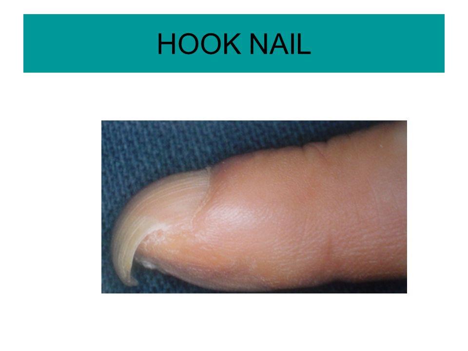 HOOK NAIL