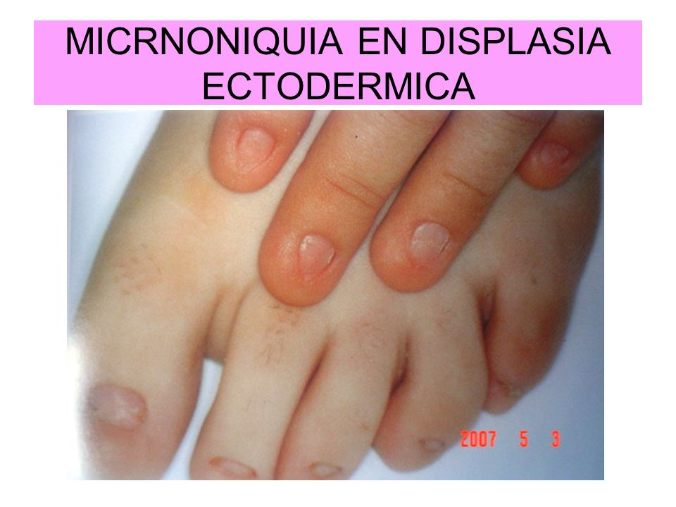 MICRNONIQUIA EN DISPLASIA ECTODERMICA