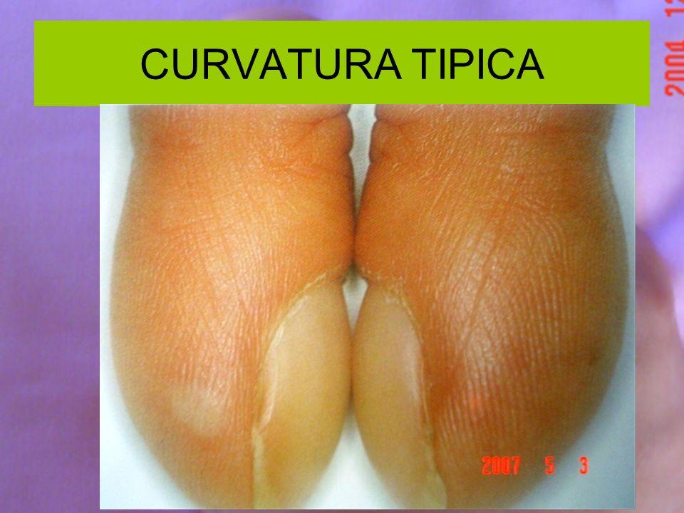 CURVATURA TIPICA