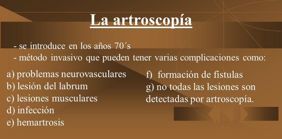 La artroscopía - se introduce en los años 70´s - método invasivo que pueden tener varias complicaciones como: