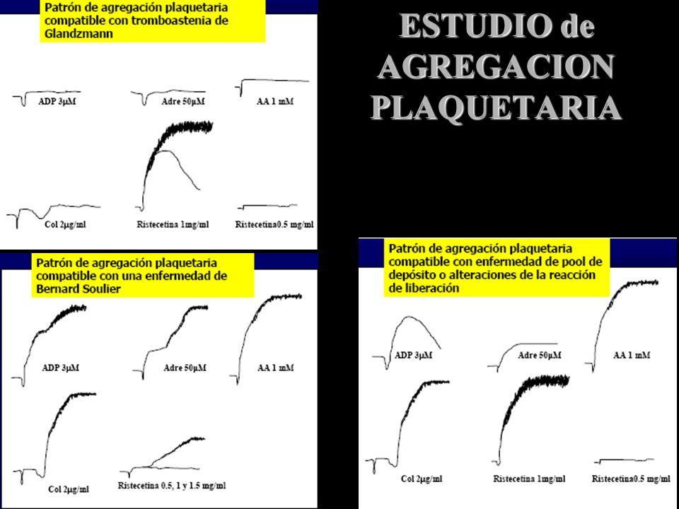 ESTUDIO de AGREGACION PLAQUETARIA