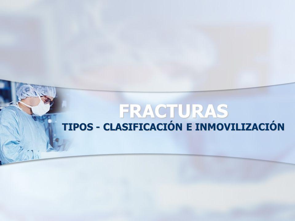 TIPOS - CLASIFICACIÓN E INMOVILIZACIÓN