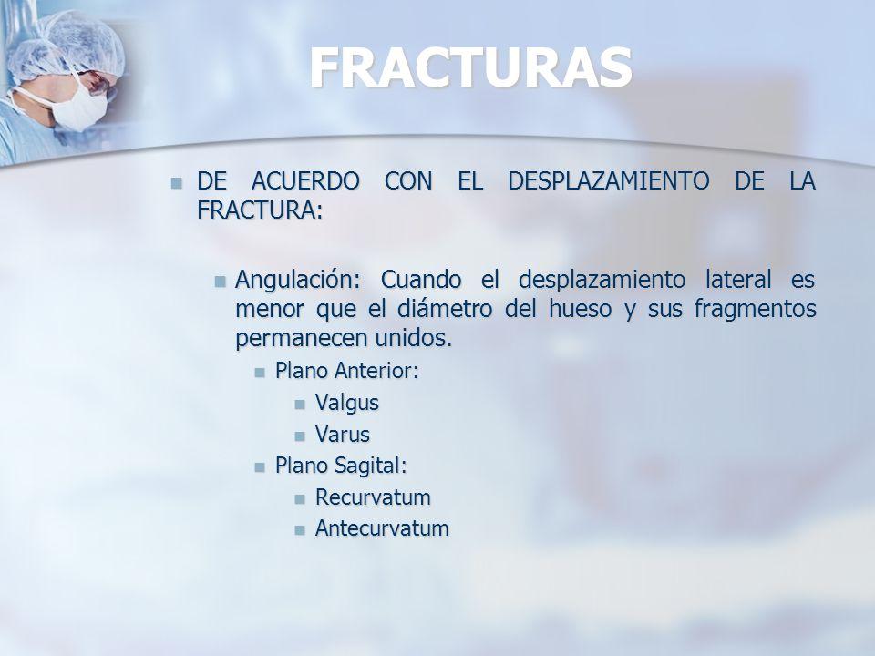 FRACTURAS DE ACUERDO CON EL DESPLAZAMIENTO DE LA FRACTURA: