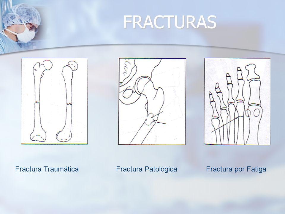 FRACTURAS Fractura Traumática Fractura Patológica Fractura por Fatiga