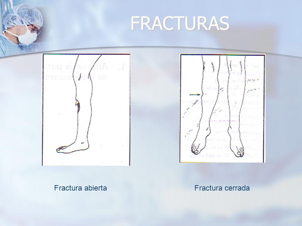 FRACTURAS Fractura abierta Fractura cerrada
