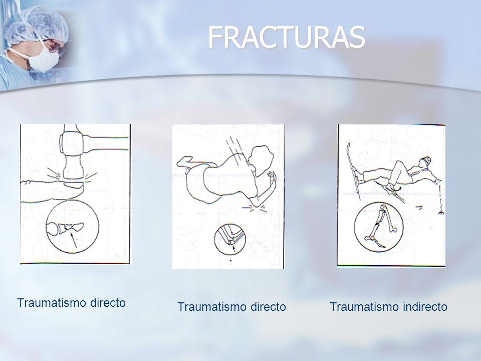 FRACTURAS Traumatismo directo Traumatismo directo