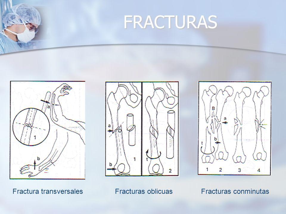 FRACTURAS Fractura transversales Fracturas oblicuas