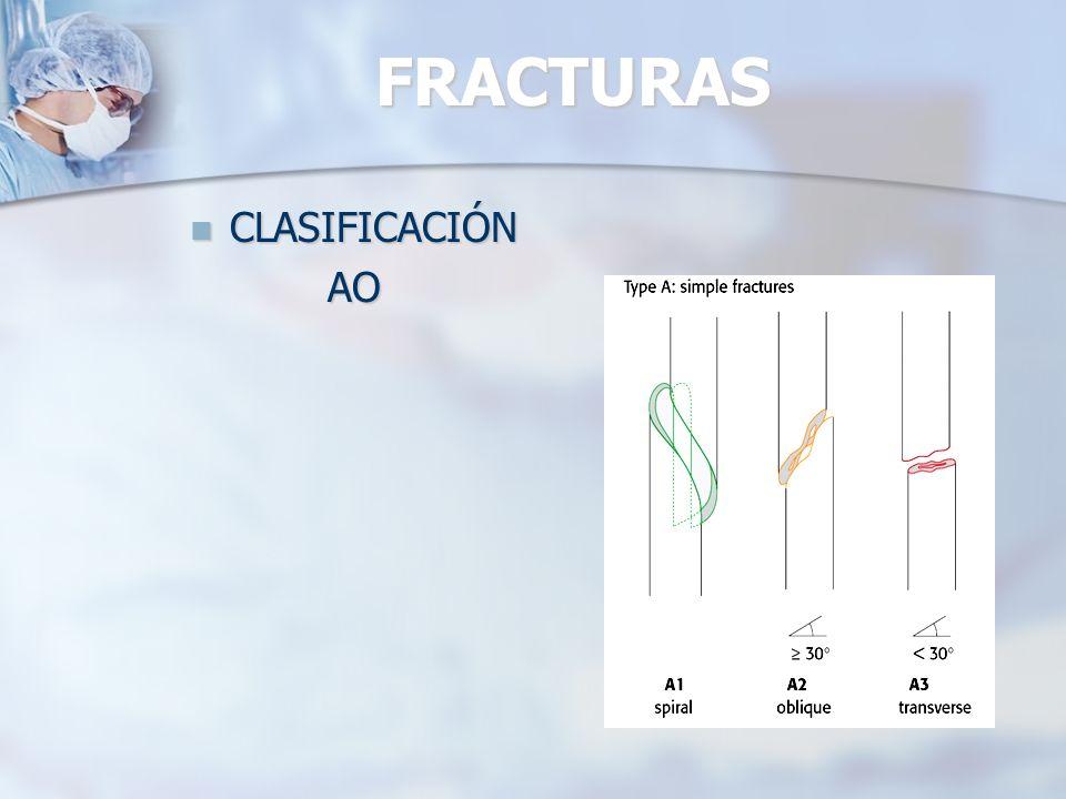 FRACTURAS CLASIFICACIÓN AO
