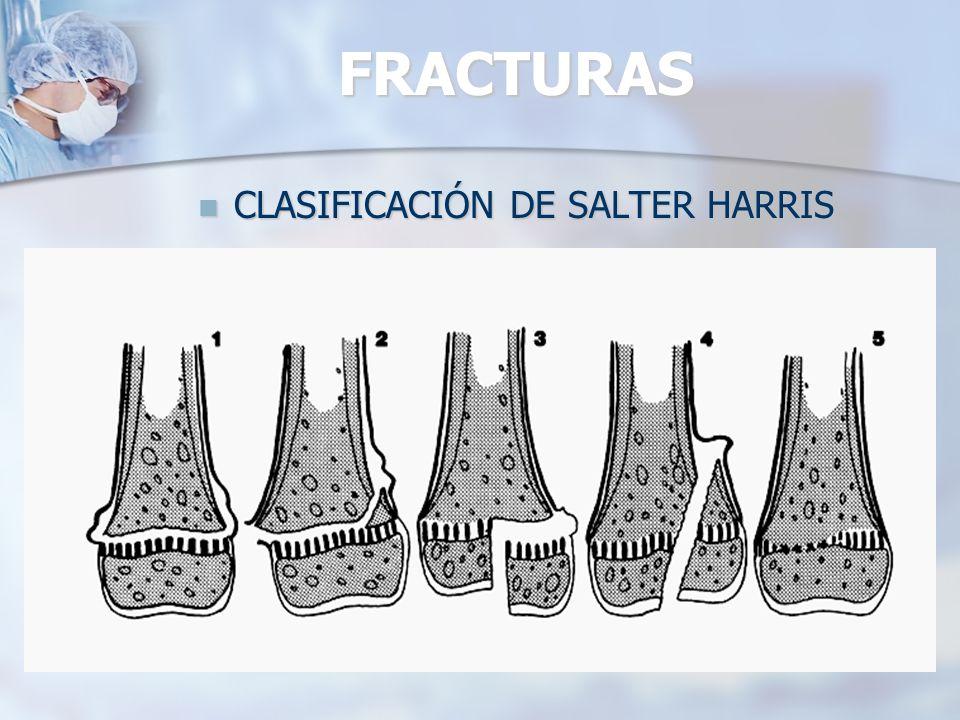 CLASIFICACIÓN DE SALTER HARRIS