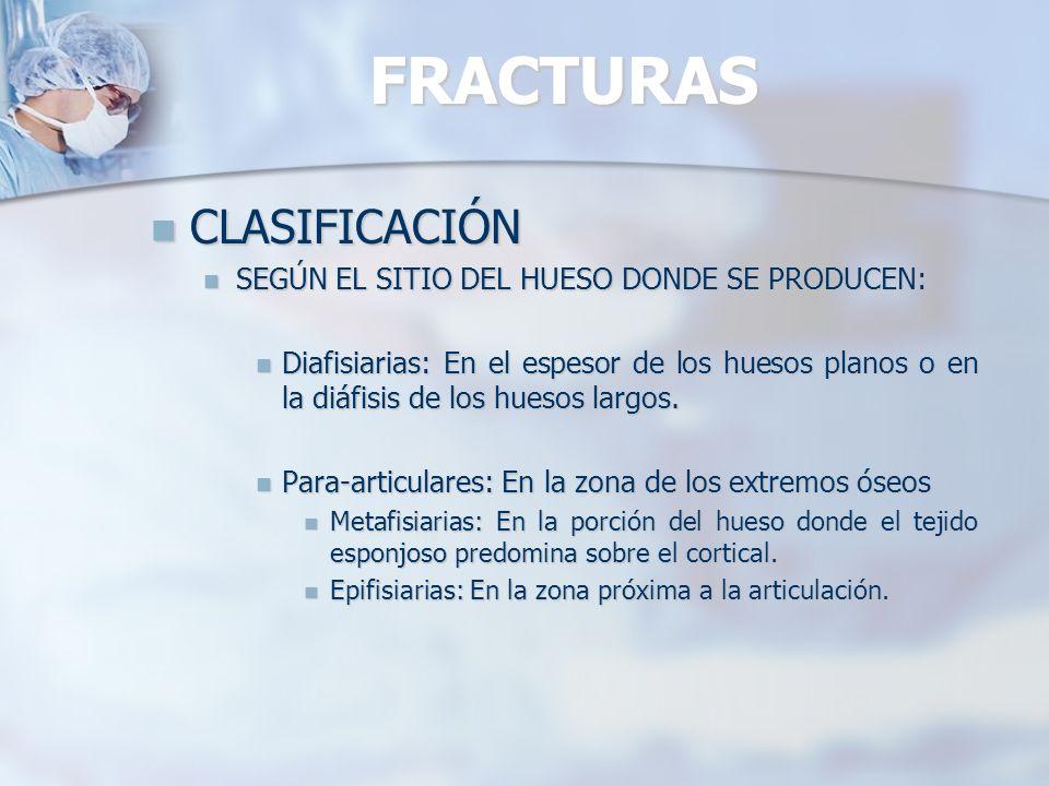 FRACTURAS CLASIFICACIÓN SEGÚN EL SITIO DEL HUESO DONDE SE PRODUCEN: