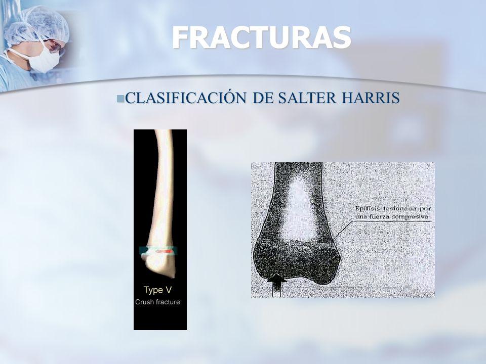 FRACTURAS CLASIFICACIÓN DE SALTER HARRIS