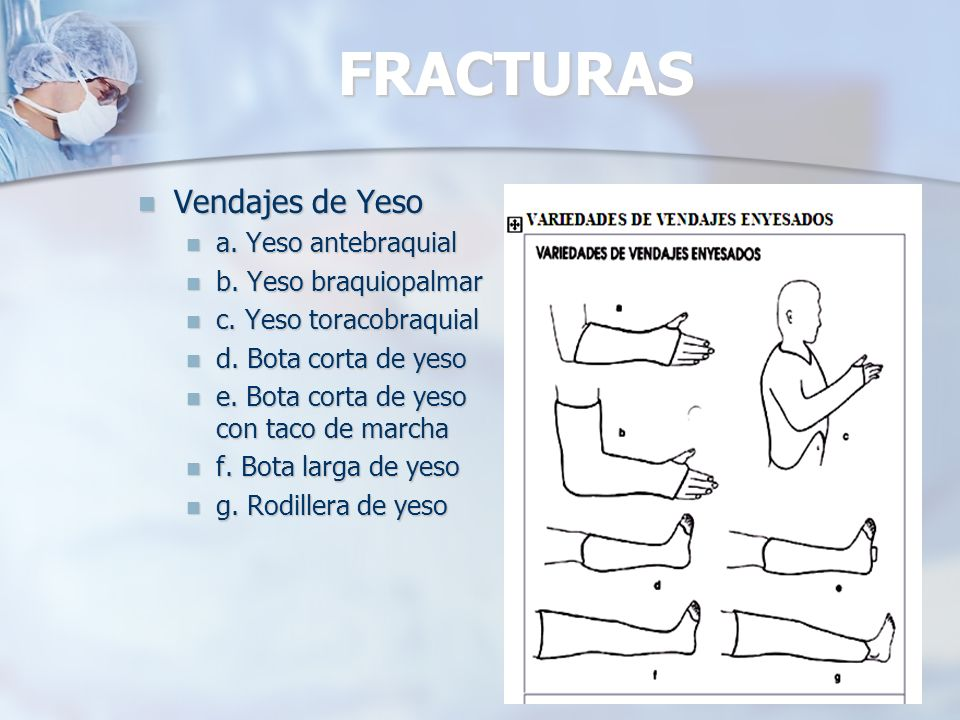FRACTURAS Vendajes de Yeso a. Yeso antebraquial b. Yeso braquiopalmar