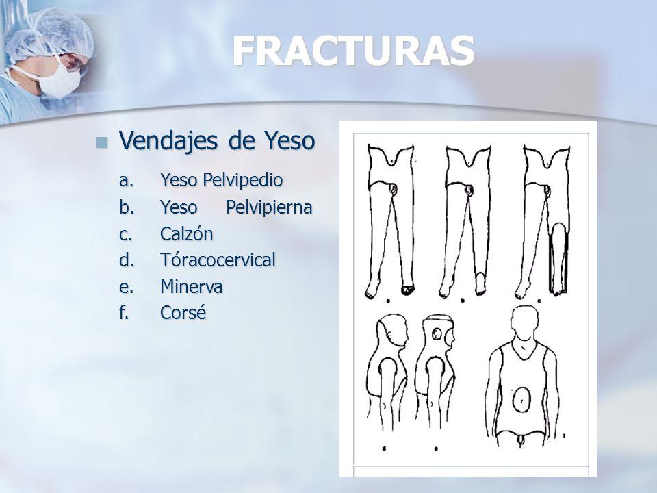 FRACTURAS Vendajes de Yeso a. Yeso Pelvipedio b. Yeso Pelvipierna
