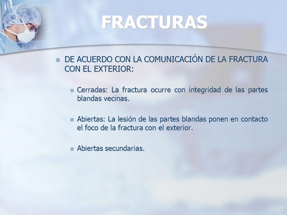 FRACTURAS DE ACUERDO CON LA COMUNICACIÓN DE LA FRACTURA CON EL EXTERIOR: Cerradas: La fractura ocurre con integridad de las partes blandas vecinas.