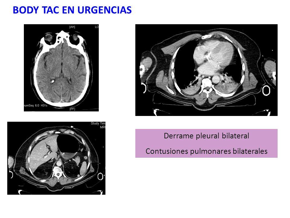 BODY TAC EN URGENCIAS Derrame pleural bilateral