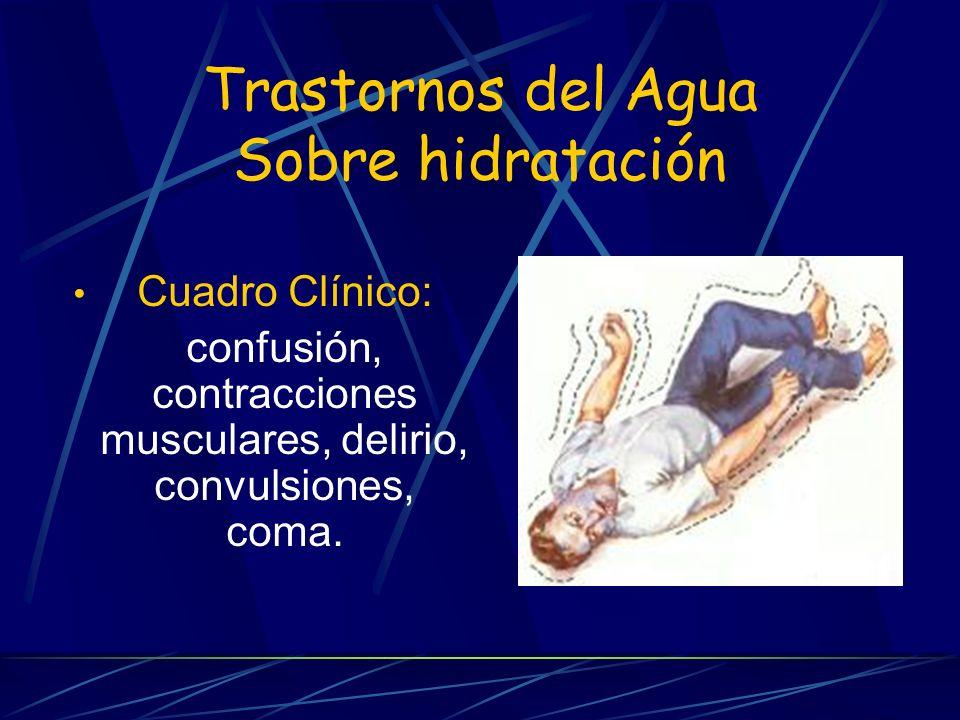 Trastornos del Agua Sobre hidratación