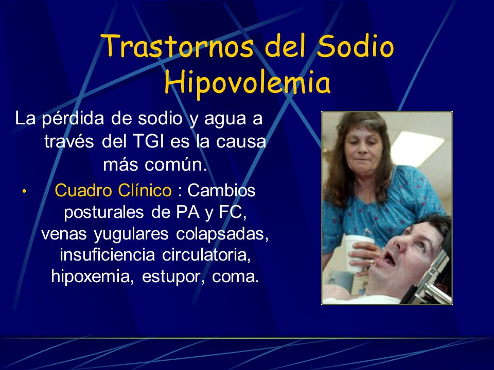 Trastornos del Sodio Hipovolemia