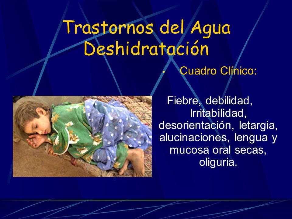 Trastornos del Agua Deshidratación