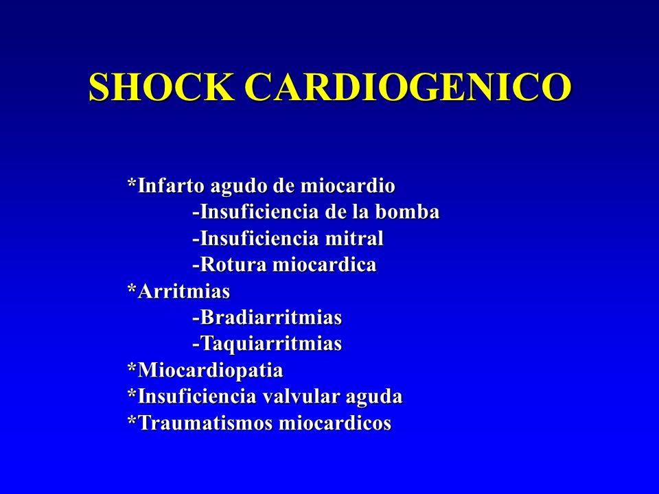 SHOCK CARDIOGENICO *Infarto agudo de miocardio