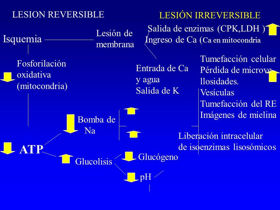 ATP Isquemia LESIÓN IRREVERSIBLE LESION REVERSIBLE