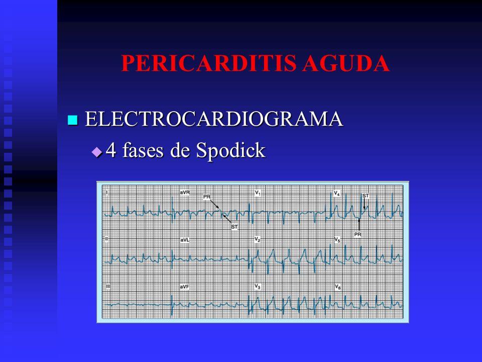 PERICARDITIS AGUDA ELECTROCARDIOGRAMA 4 fases de Spodick