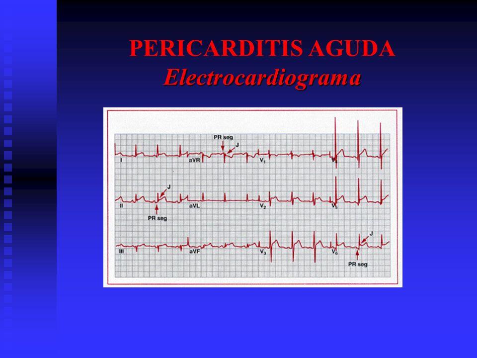 PERICARDITIS AGUDA Electrocardiograma