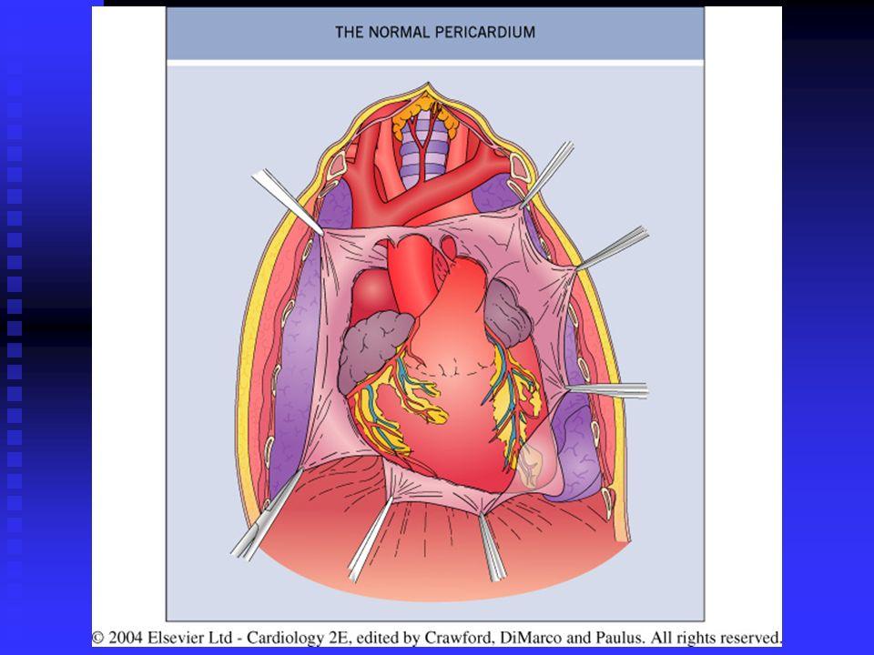 Fig. 15. 1 Normal pericardium