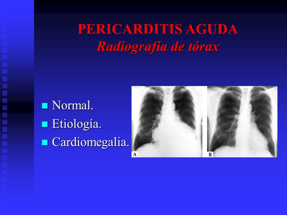 PERICARDITIS AGUDA Radiografía de tórax