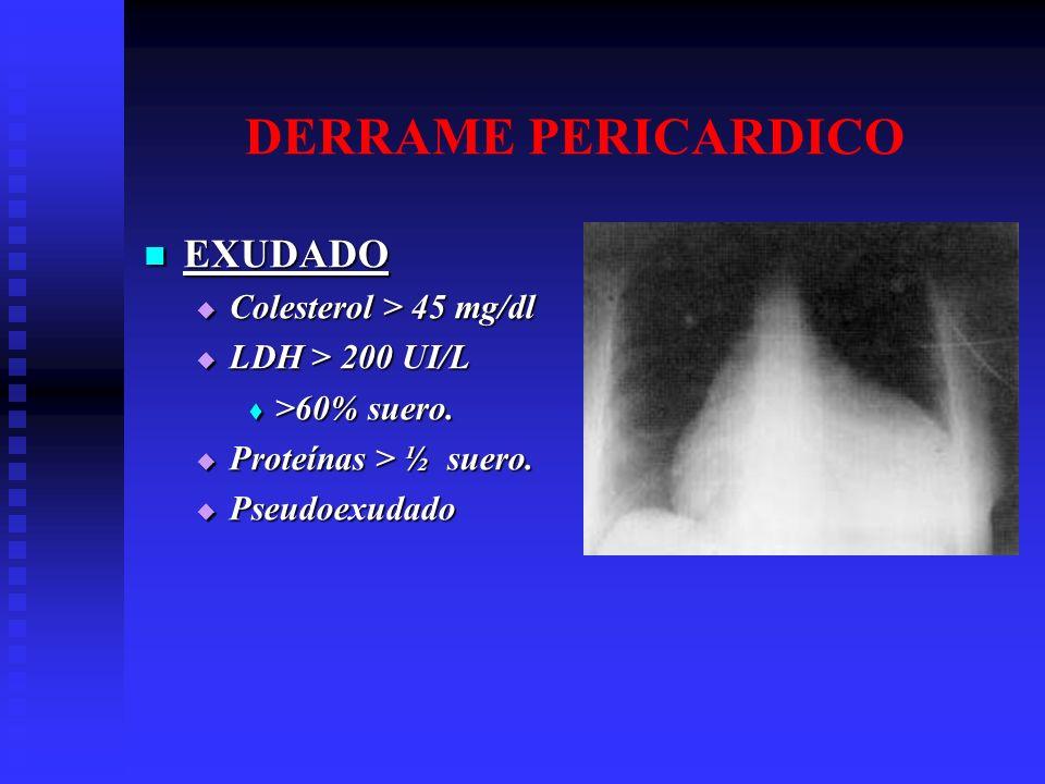 DERRAME PERICARDICO EXUDADO Colesterol > 45 mg/dl LDH > 200 UI/L