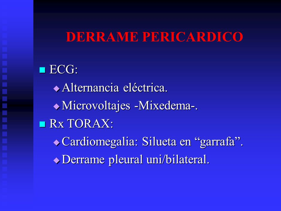 DERRAME PERICARDICO ECG: Alternancia eléctrica.