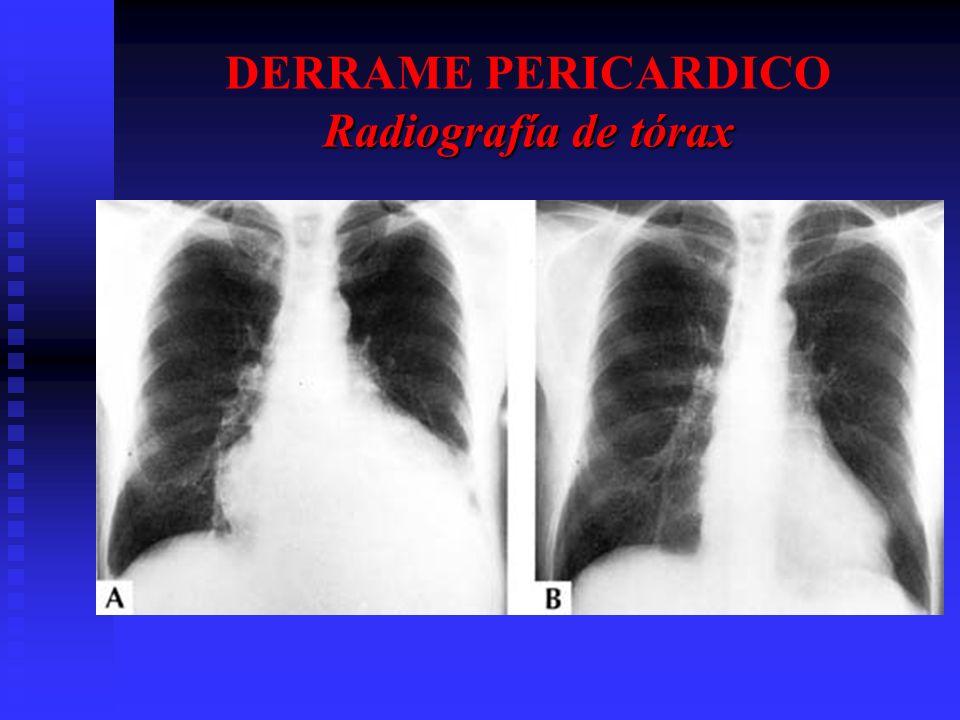 DERRAME PERICARDICO Radiografía de tórax