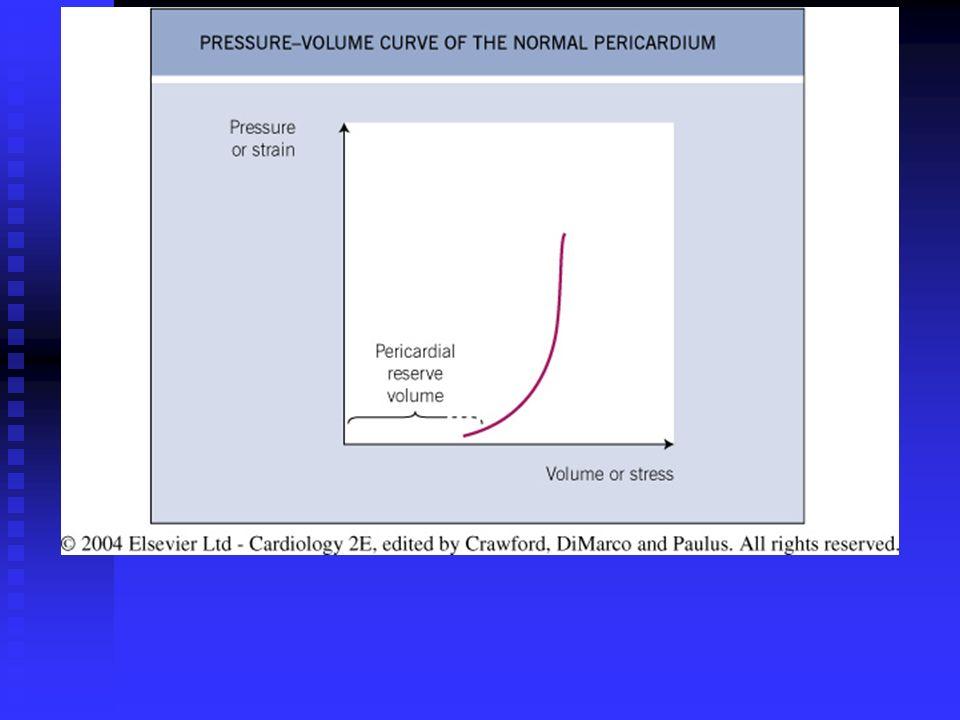 Fig. 15. 2 Pressure–volume curve of the normal pericardium
