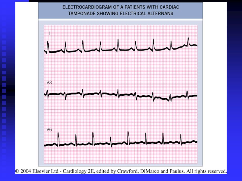 Fig Electrocardiogram of a patient with cardiac tamponade showing electrical alternans.