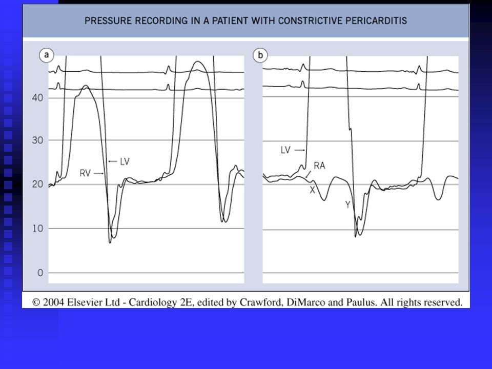 Fig. 15.15 Pressure recording in a patient with constrictive pericarditis.