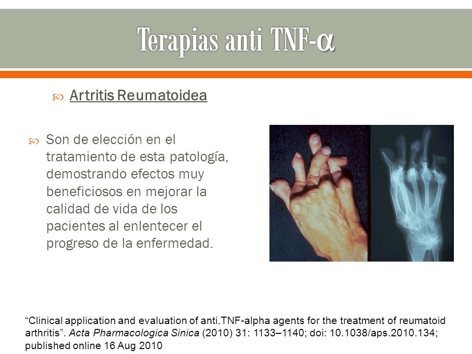 Terapias anti TNF-α Artritis Reumatoidea