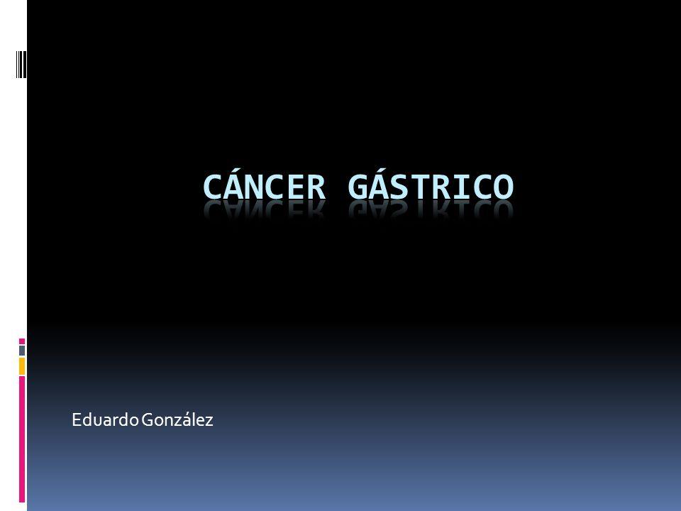 CÁNCER GÁSTRICO Eduardo González