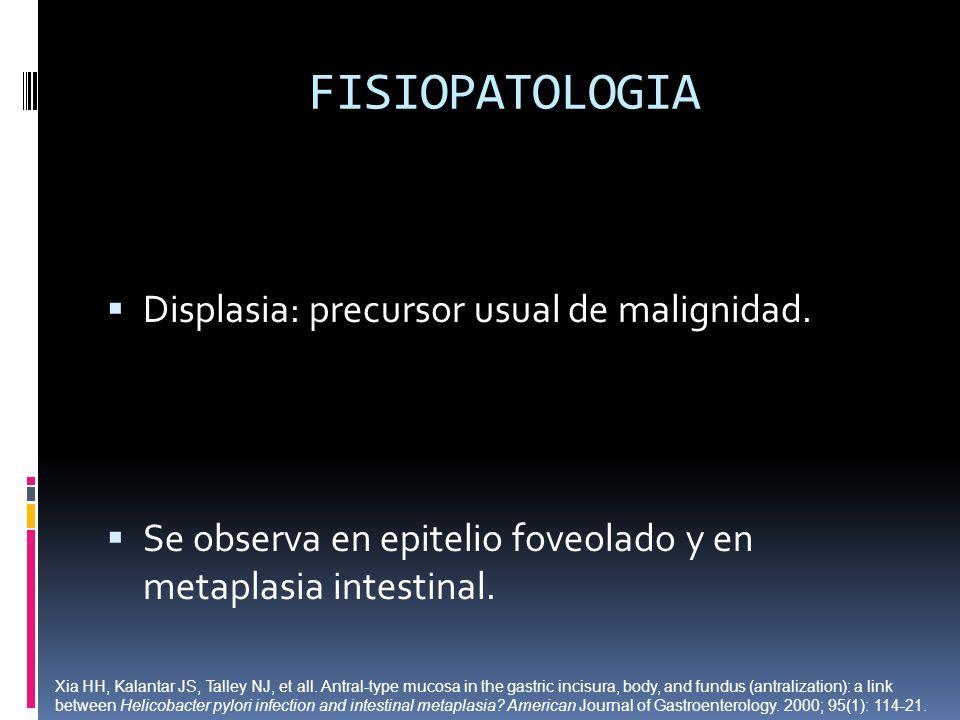 FISIOPATOLOGIA Displasia: precursor usual de malignidad.