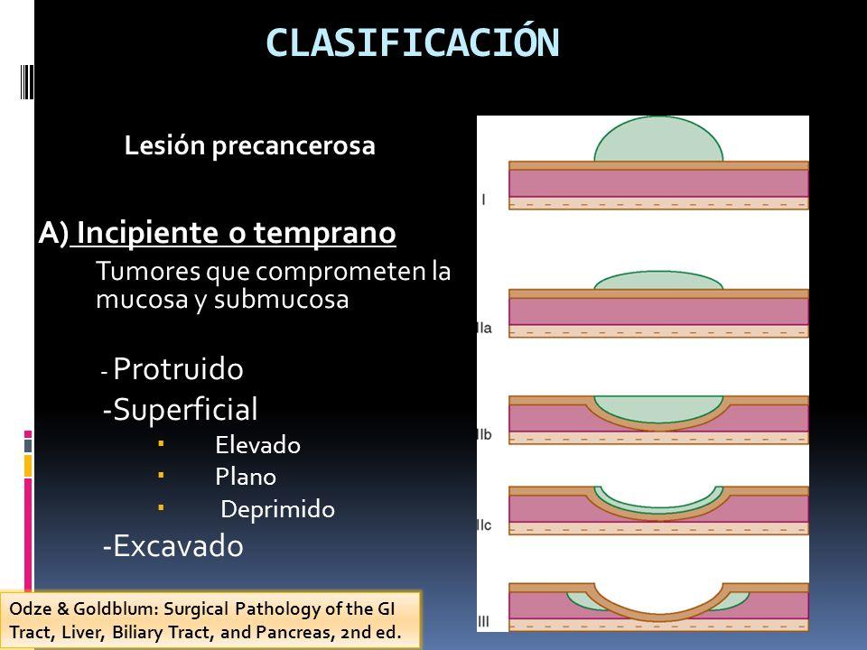 CLASIFICACIÓN A) Incipiente o temprano -Superficial -Excavado