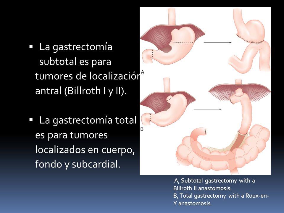 tumores de localización antral (Billroth I y II).