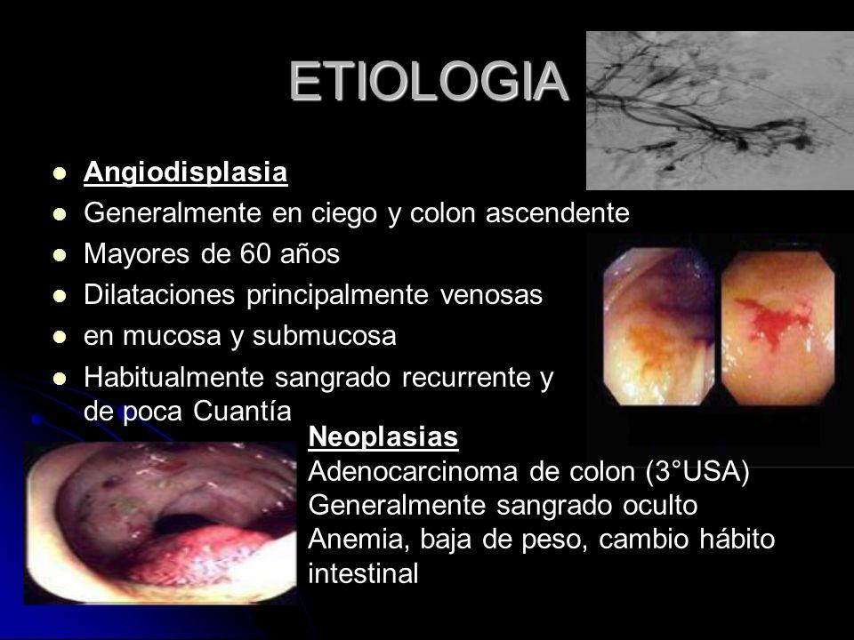 ETIOLOGIA Angiodisplasia Generalmente en ciego y colon ascendente