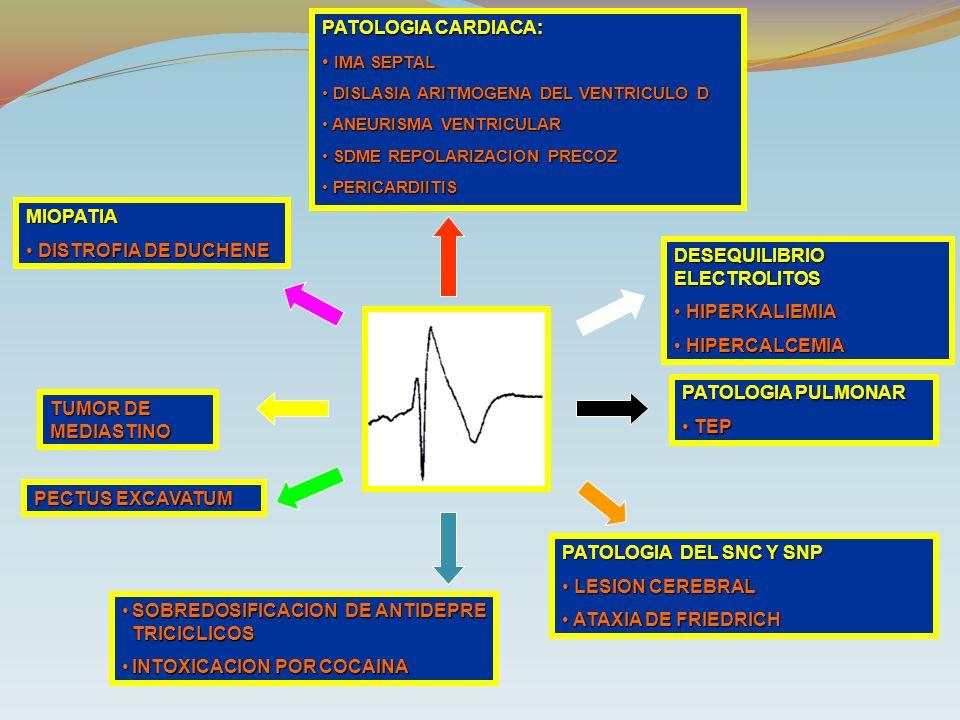 DESEQUILIBRIO ELECTROLITOS HIPERKALIEMIA HIPERCALCEMIA