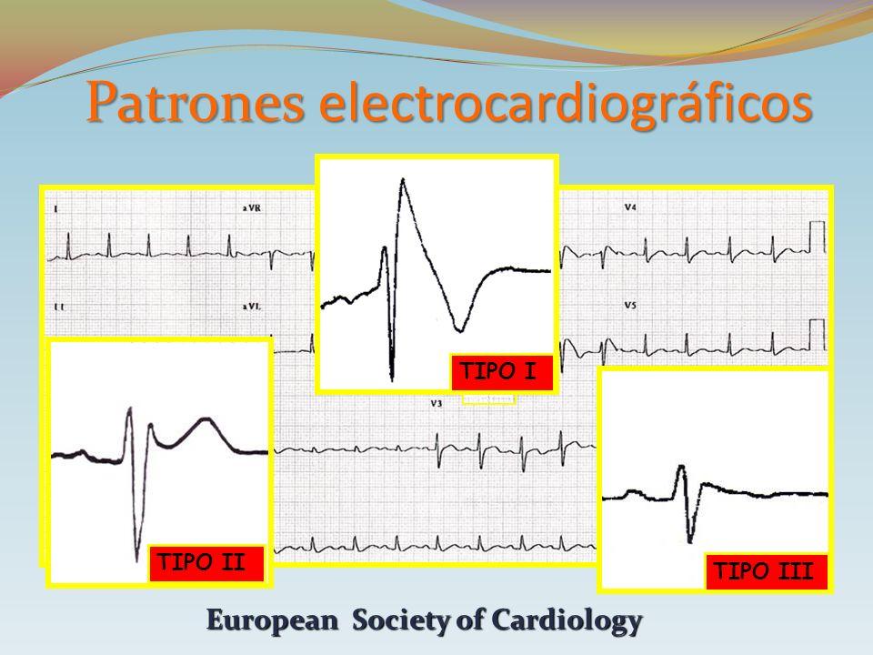 Patrones electrocardiográficos