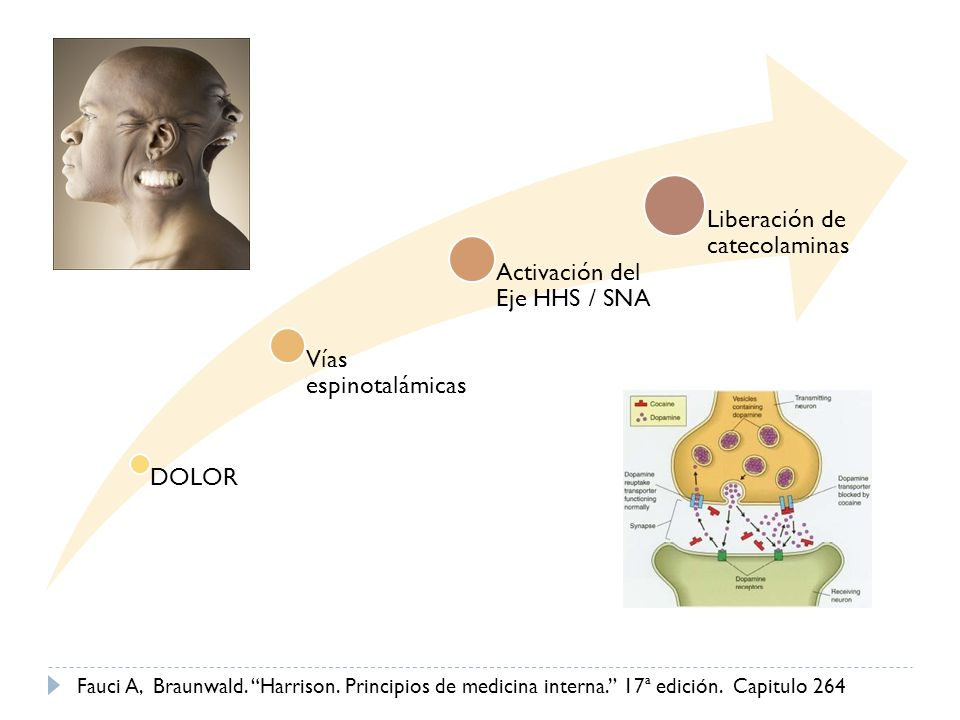 DOLOR Vías espinotalámicas. Activación del Eje HHS / SNA. Liberación de catecolaminas. H-H-S Eje hipotalamo hipofisis suprarrenales.