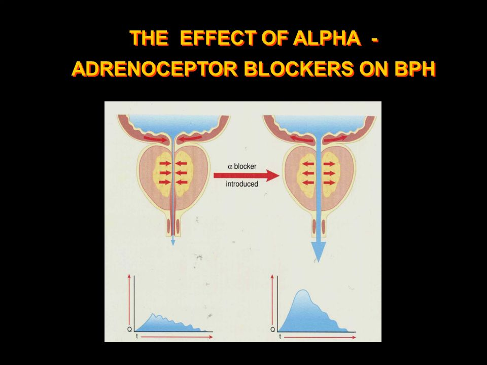 THE EFFECT OF ALPHA - ADRENOCEPTOR BLOCKERS ON BPH