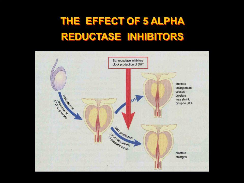 THE EFFECT OF 5 ALPHA REDUCTASE INHIBITORS