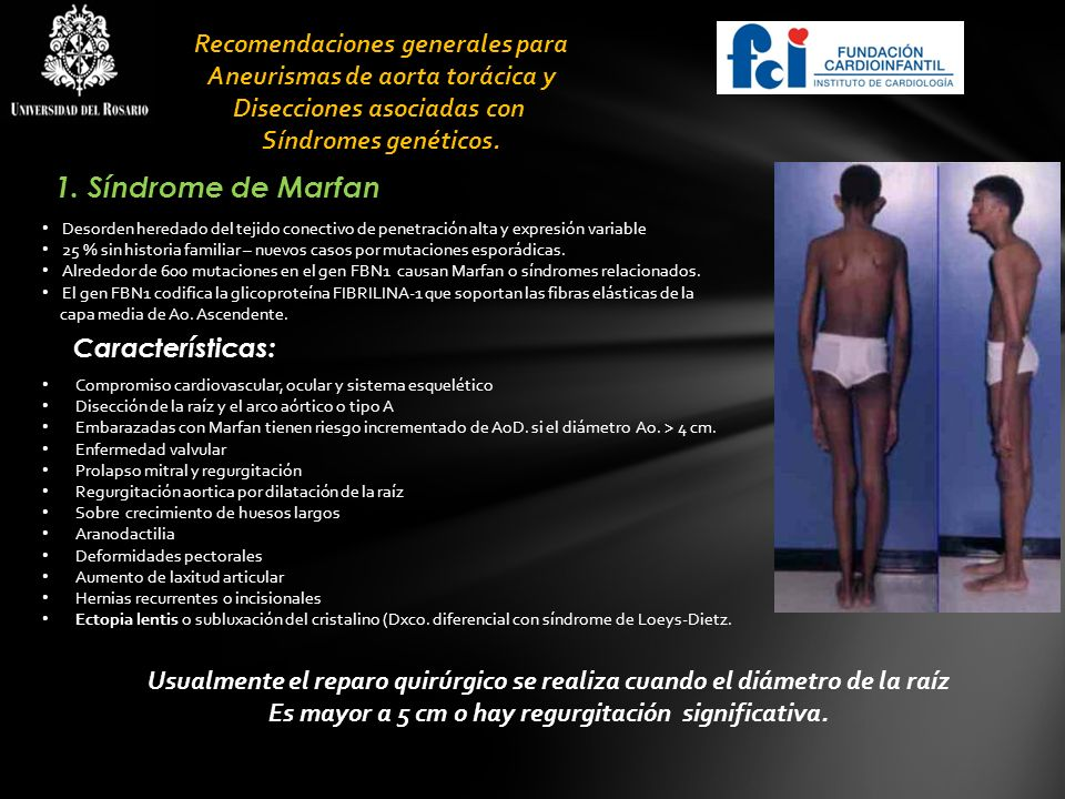 1. Síndrome de Marfan Recomendaciones generales para