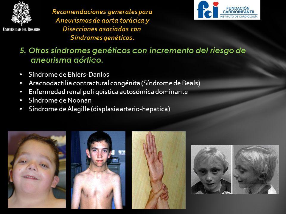 5. Otros síndromes genéticos con incremento del riesgo de