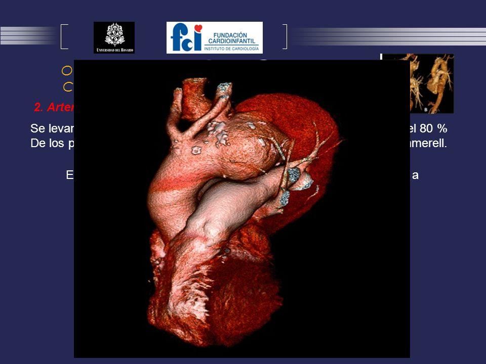 Otras condiciones cardiovasculares asociadas