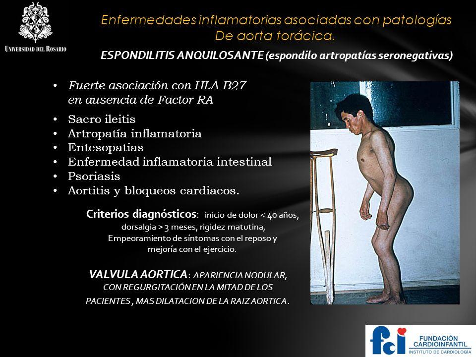 ESPONDILITIS ANQUILOSANTE (espondilo artropatías seronegativas)