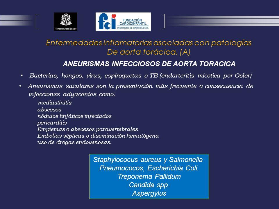 ANEURISMAS INFECCIOSOS DE AORTA TORACICA